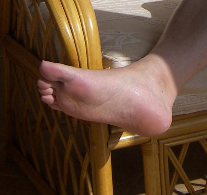 Prohibit cracked heels - Image by lapis1943